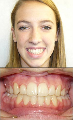 Before And After Hersh Beattie Orthodontics West Bloomfield
